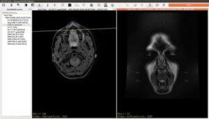 Como instalar o visualização de imagens JimboDICOMViewer no Linux via Snap
