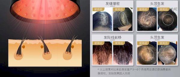 Xiaomi lançou um boné que promete reverter a perda de cabelo em 12 semanas